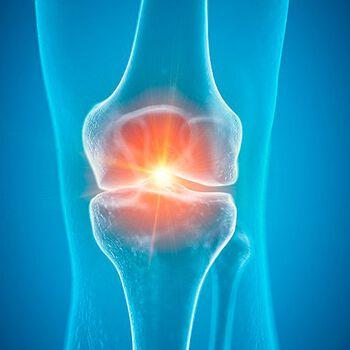 KNEFIKSER: I fremtiden kan slitasjeskader i knær kanskje fikses med genterapi eller ved å dyrke opp ny brusk fra dine egne stamceller. Foto: NTB Scanpix.